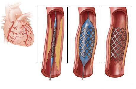 коронарная ангиопластика